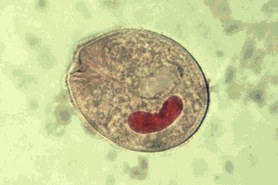 Balantidium_coli