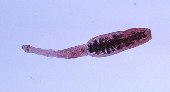 echinococcus_granulosus2