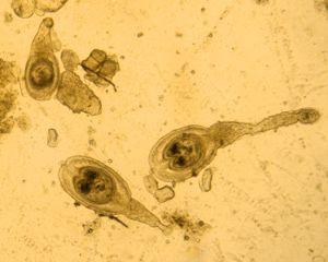 hymenolepsis_diminuta_cisticercoide
