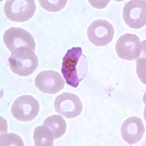 malaria_-_plasmodium2